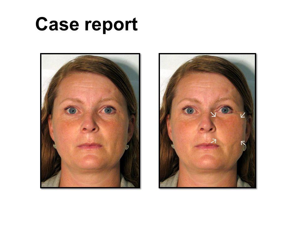 ↘ ↘ ↘ ↘ Case report