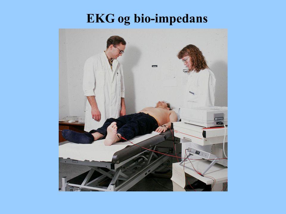 EKG og bio-impedans
