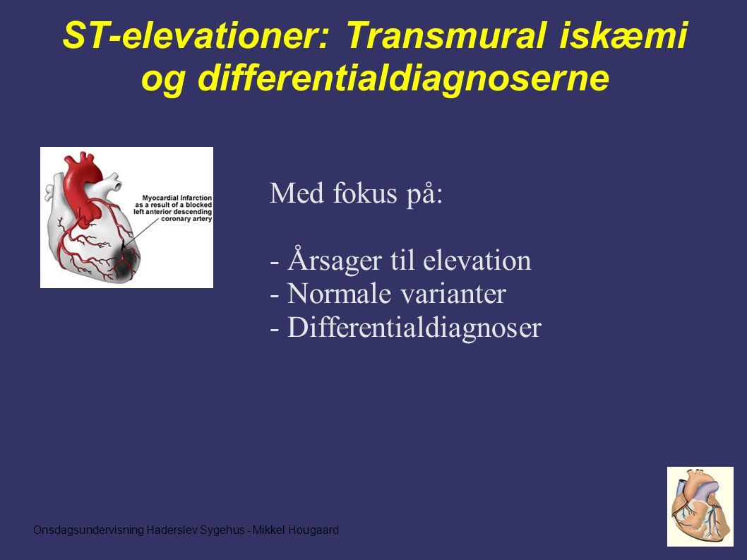 Onsdagsundervisning Haderslev Sygehus - Mikkel Hougaard ST-elevationer: Transmural iskæmi og differentialdiagnoserne Med fokus på: - Årsager til elevation - Normale varianter - Differentialdiagnoser