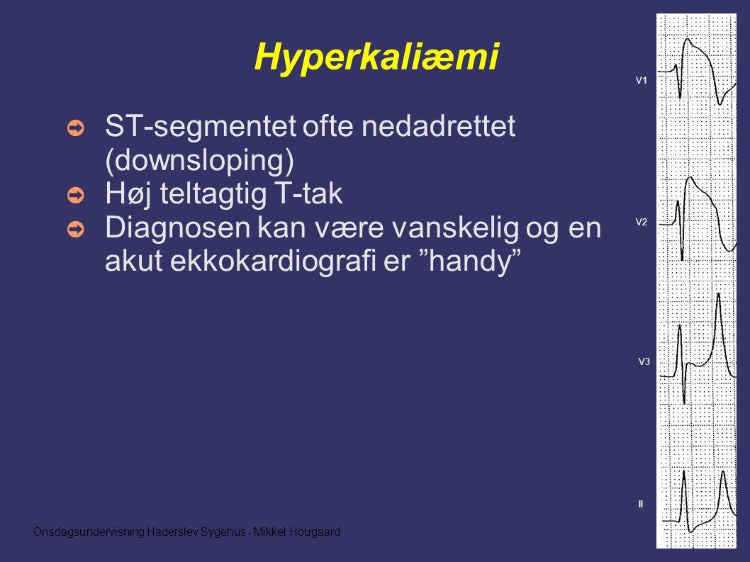 Onsdagsundervisning Haderslev Sygehus - Mikkel Hougaard Hyperkaliæmi ➲ ST-segmentet ofte nedadrettet (downsloping) ➲ Høj teltagtig T-tak ➲ Diagnosen kan være vanskelig og en akut ekkokardiografi er handy II V3 V2 V1