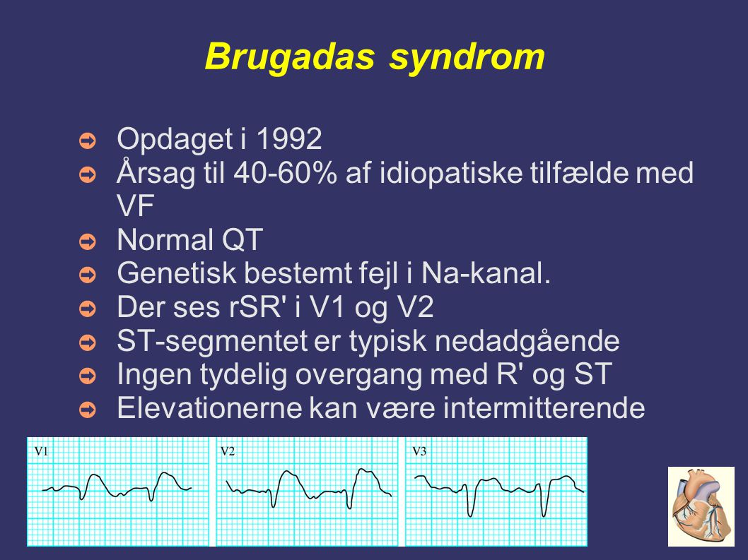 Onsdagsundervisning Haderslev Sygehus - Mikkel Hougaard Brugadas syndrom ➲ Opdaget i 1992 ➲ Årsag til 40-60% af idiopatiske tilfælde med VF ➲ Normal QT ➲ Genetisk bestemt fejl i Na-kanal.