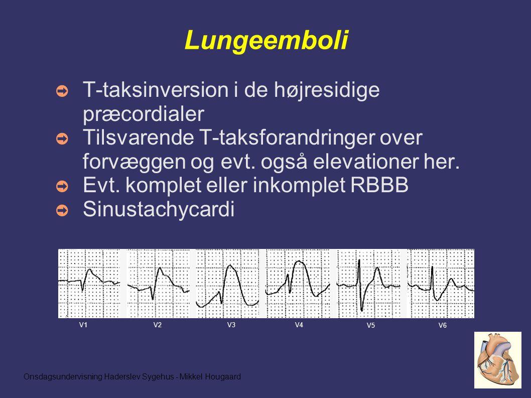 Onsdagsundervisning Haderslev Sygehus - Mikkel Hougaard Lungeemboli ➲ T-taksinversion i de højresidige præcordialer ➲ Tilsvarende T-taksforandringer over forvæggen og evt.