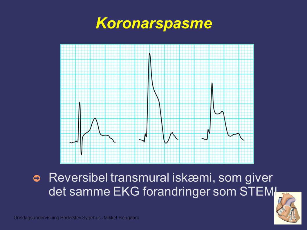 Onsdagsundervisning Haderslev Sygehus - Mikkel Hougaard Koronarspasme ➲ Reversibel transmural iskæmi, som giver det samme EKG forandringer som STEMI