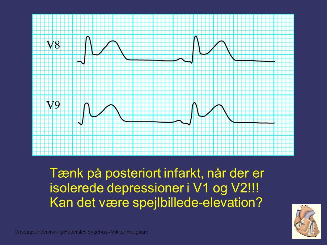 Tænk på posteriort infarkt, når der er isolerede depressioner i V1 og V2!!.
