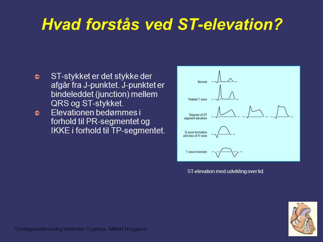 Onsdagsundervisning Haderslev Sygehus - Mikkel Hougaard Hvad forstås ved ST-elevation.