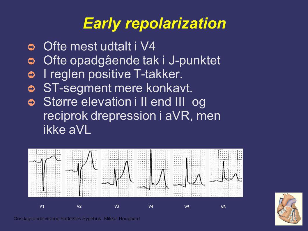 Onsdagsundervisning Haderslev Sygehus - Mikkel Hougaard Early repolarization ➲ Ofte mest udtalt i V4 ➲ Ofte opadgående tak i J-punktet ➲ I reglen positive T-takker.