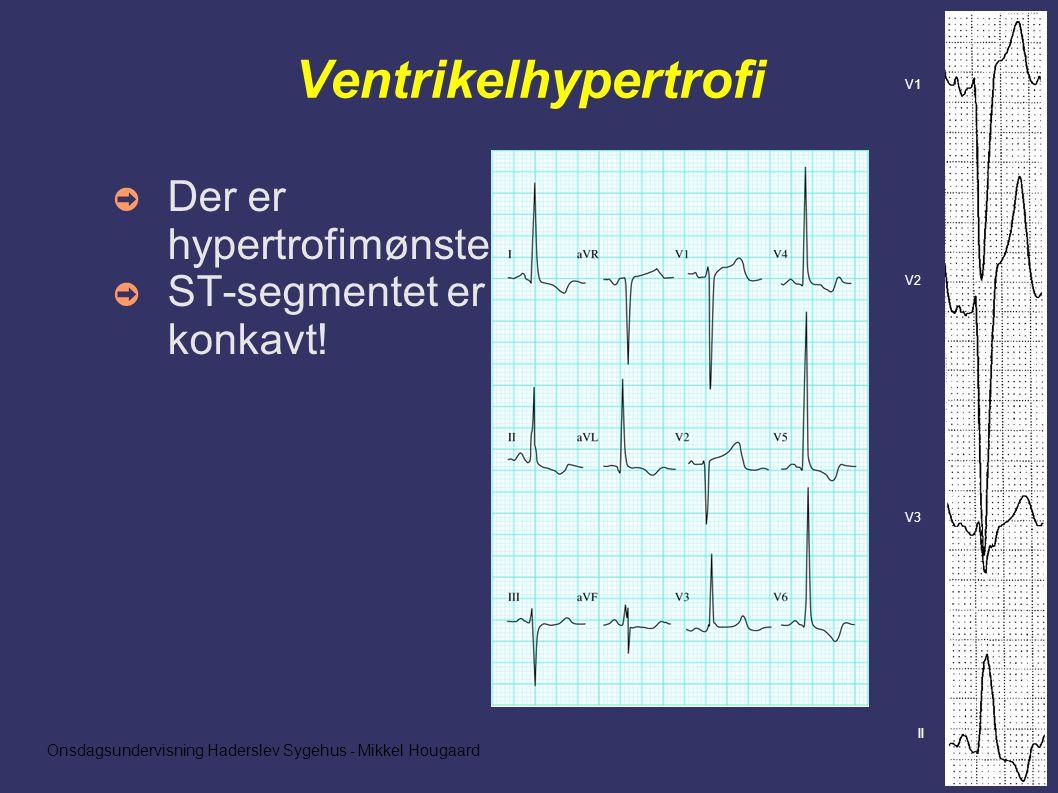 Onsdagsundervisning Haderslev Sygehus - Mikkel Hougaard Ventrikelhypertrofi ➲ Der er hypertrofimønster ➲ ST-segmentet er konkavt.