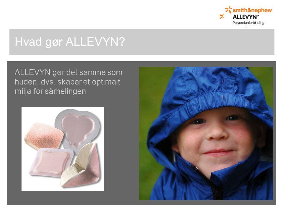 Hvad gør ALLEVYN ALLEVYN gør det samme som huden, dvs. skaber et optimalt miljø for sårhelingen