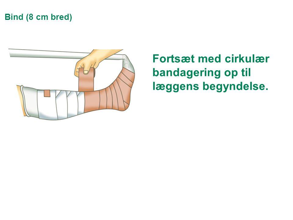 Bind (8 cm bred) Fortsæt med cirkulær bandagering op til læggens begyndelse.