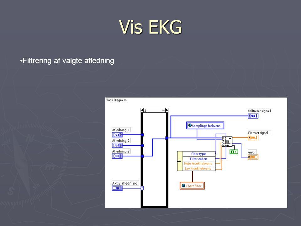 Vis EKG Filtrering af valgte afledning