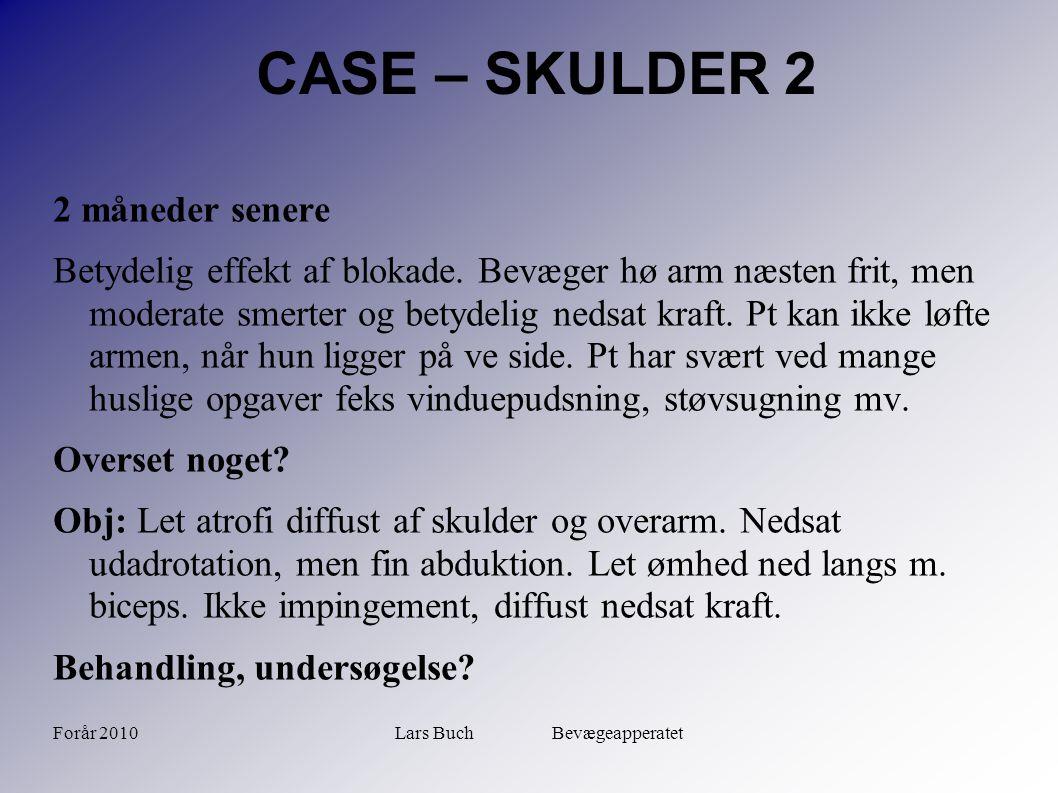 Forår 2010Lars Buch Bevægeapperatet CASE – SKULDER 2 2 måneder senere Betydelig effekt af blokade. Bevæger hø arm næsten frit, men moderate smerter og