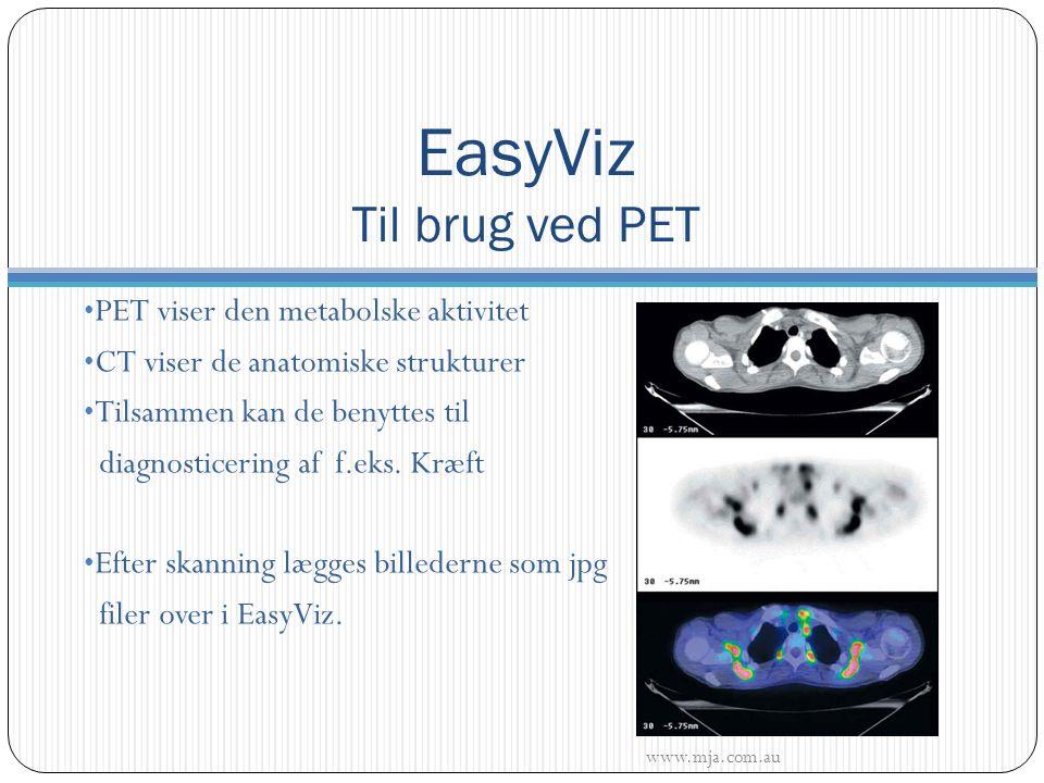 PET viser den metabolske aktivitet CT viser de anatomiske strukturer Tilsammen kan de benyttes til diagnosticering af f.eks.
