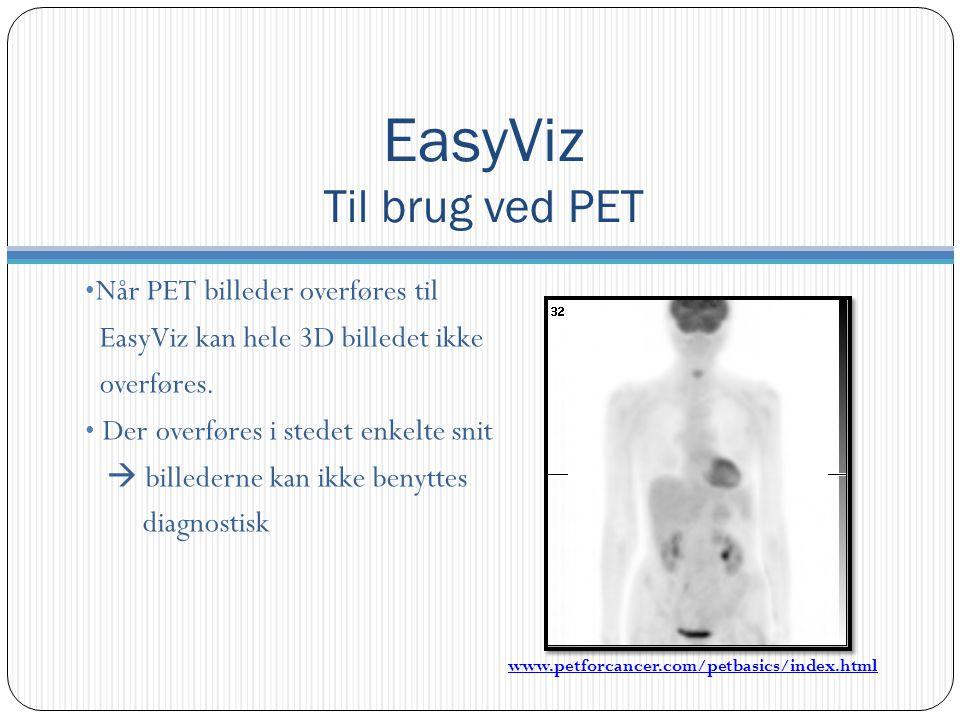 Når PET billeder overføres til EasyViz kan hele 3D billedet ikke overføres.