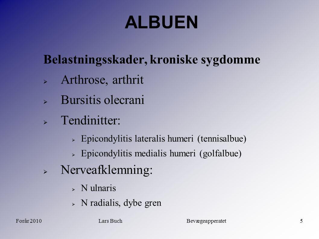 Forår 2010Lars Buch Bevægeapperatet5 ALBUEN Belastningsskader, kroniske sygdomme  Arthrose, arthrit  Bursitis olecrani  Tendinitter:  Epicondyliti