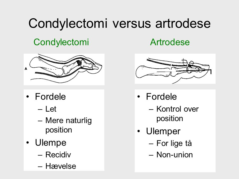 Condylectomi versus artrodese Fordele –Let –Mere naturlig position Ulempe –Recidiv –Hævelse Fordele –Kontrol over position Ulemper –For lige tå –Non-union CondylectomiArtrodese
