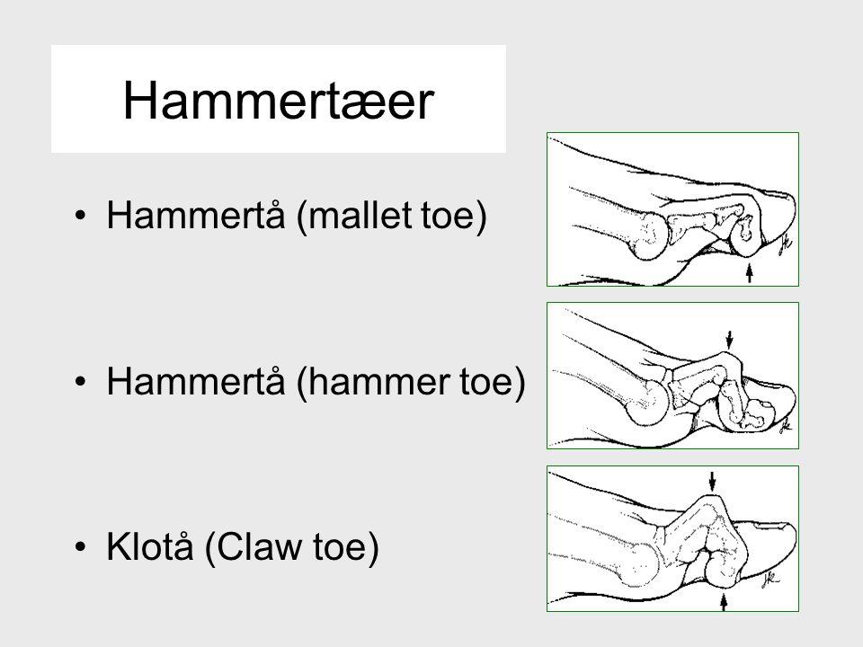 Hammertæer Hammertå (mallet toe) Hammertå (hammer toe) Klotå (Claw toe)