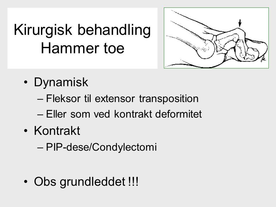 Dynamisk –Fleksor til extensor transposition –Eller som ved kontrakt deformitet Kontrakt –PIP-dese/Condylectomi Obs grundleddet !!.