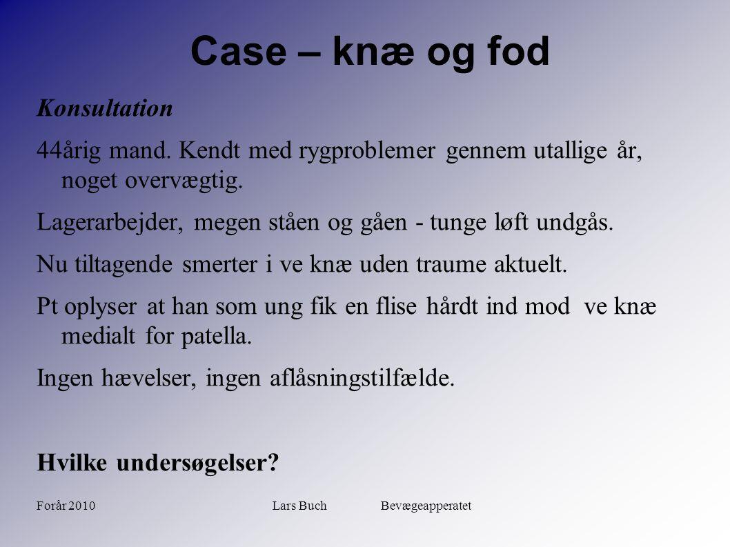 Forår 2010Lars Buch Bevægeapperatet Case – knæ og fod Objektivt Ingen ansamling, ingen sideløshed eller skuffesymptom.