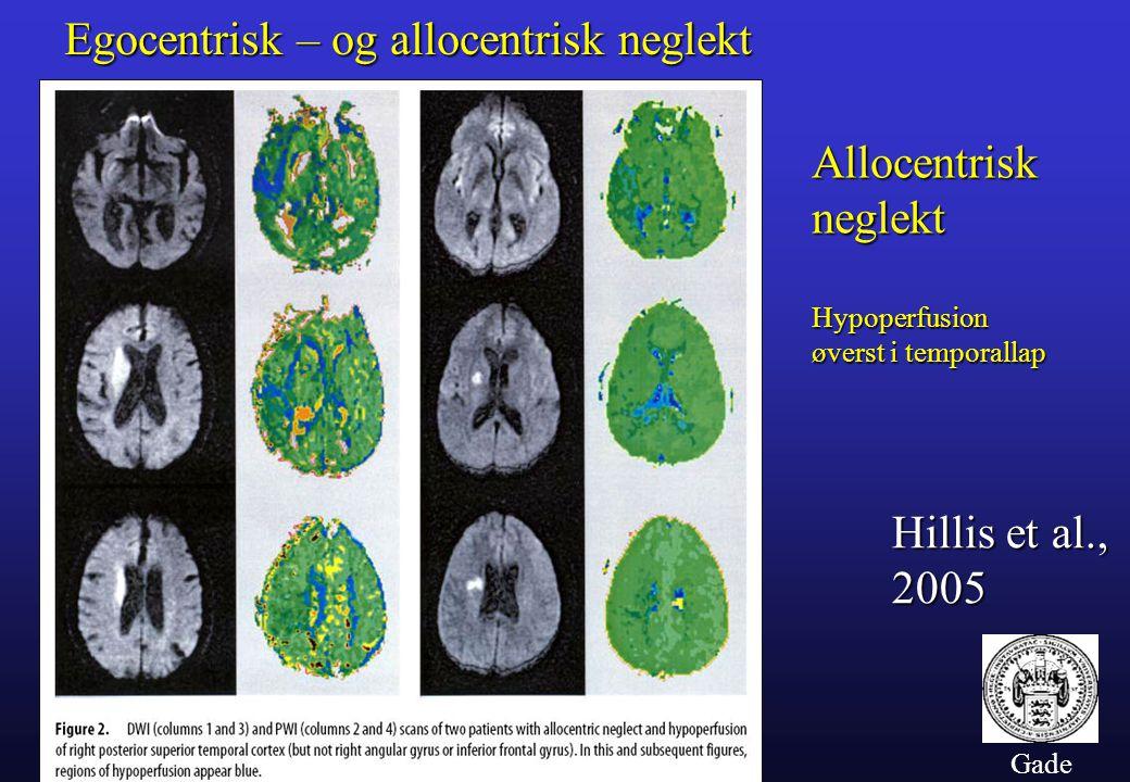 Gade Egocentrisk – og allocentrisk neglekt Hillis et al., 2005 Allocentrisk neglekt Hypoperfusion øverst i temporallap