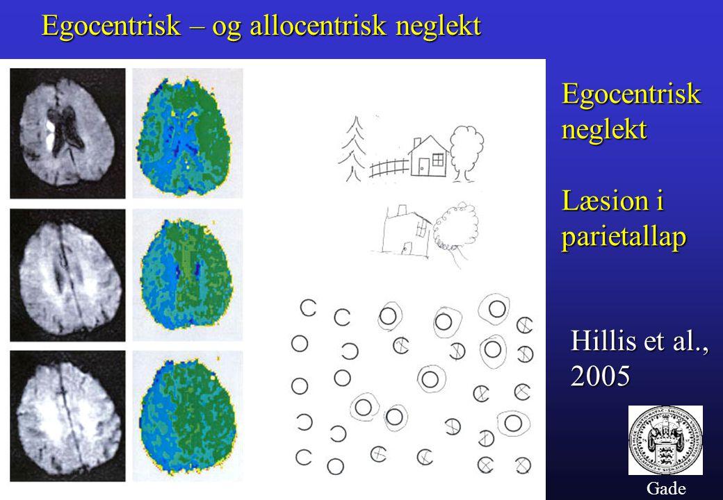 Gade Egocentrisk – og allocentrisk neglekt Hillis et al., 2005 Egocentrisk neglekt Læsion i parietallap