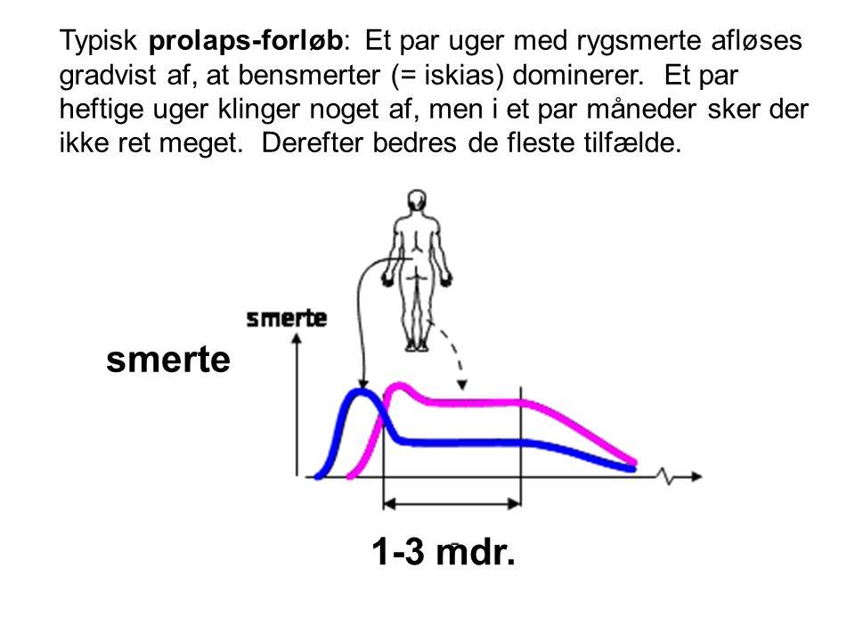 Typisk prolaps-forløb: Et par uger med rygsmerte afløses gradvist af, at bensmerter (= iskias) dominerer. Et par heftige uger klinger noget af, men i