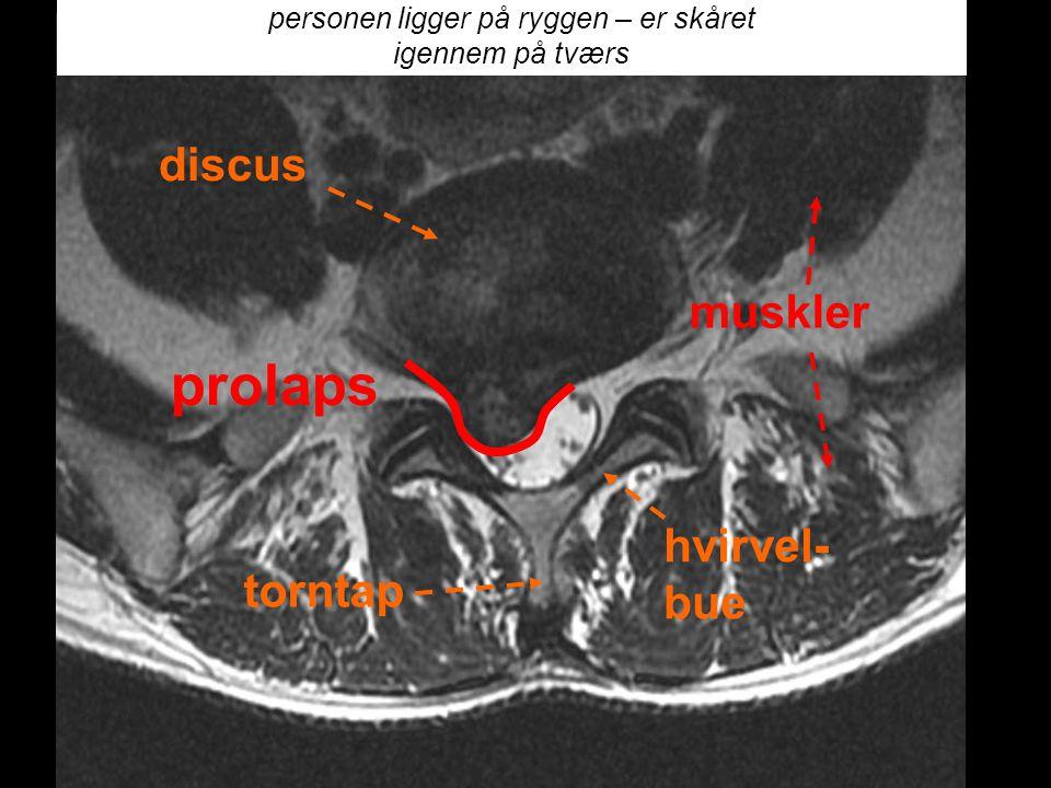 hvirvel- bue torntap discus personen ligger på ryggen – er skåret igennem på tværs muskler hvirvel- bue torntap discus prolaps
