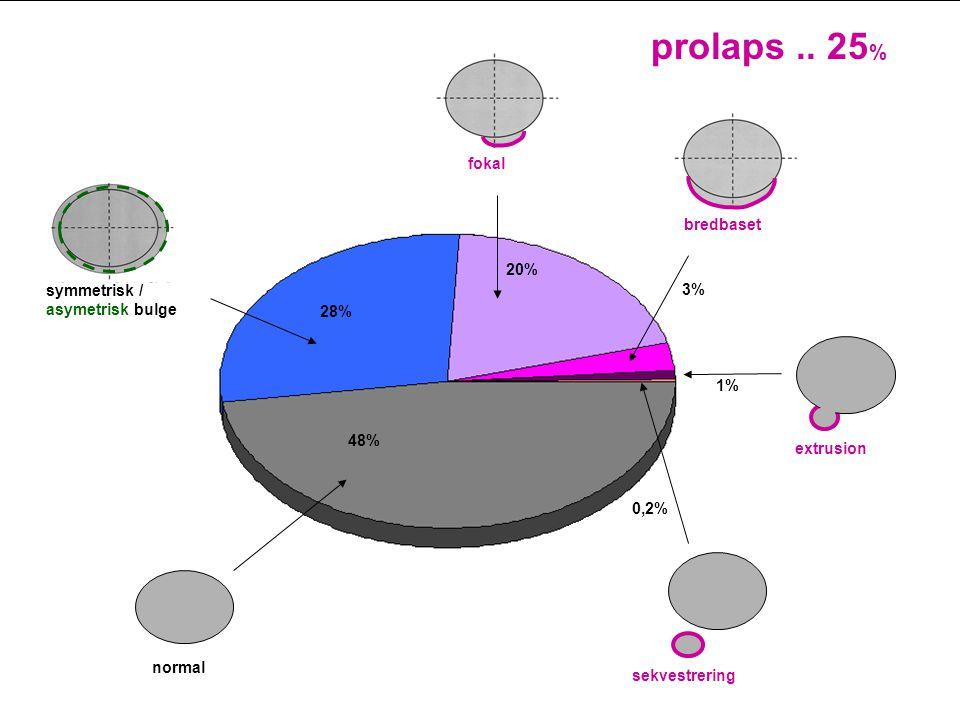symmetrisk / asymetrisk bulge normal bredbaset prolaps.. 25 % fokal extrusion 1% 3% 20% 48% 28% sekvestrering 0,2%