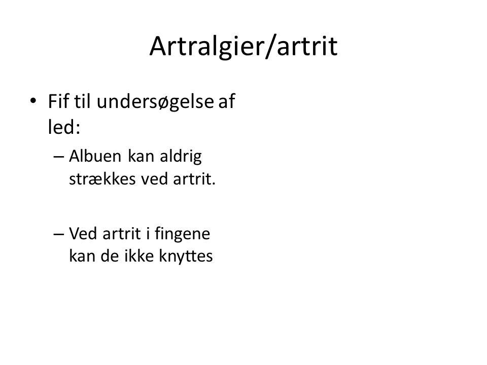 Artralgier/artrit Fif til undersøgelse af led: – Albuen kan aldrig strækkes ved artrit.