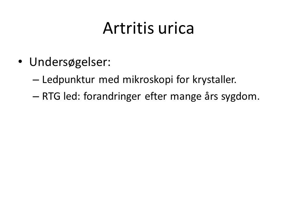 Artritis urica Undersøgelser: – Ledpunktur med mikroskopi for krystaller.