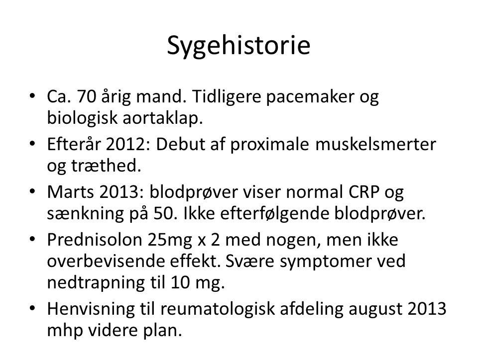 Sygehistorie Ca. 70 årig mand. Tidligere pacemaker og biologisk aortaklap.