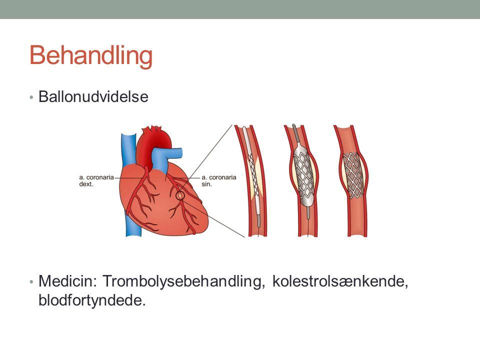 Behandling Ballonudvidelse Medicin: Trombolysebehandling, kolestrolsænkende, blodfortyndede.