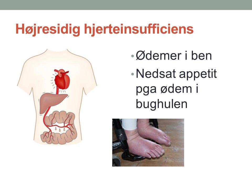 Højresidig hjerteinsufficiens Ødemer i ben Nedsat appetit pga ødem i bughulen