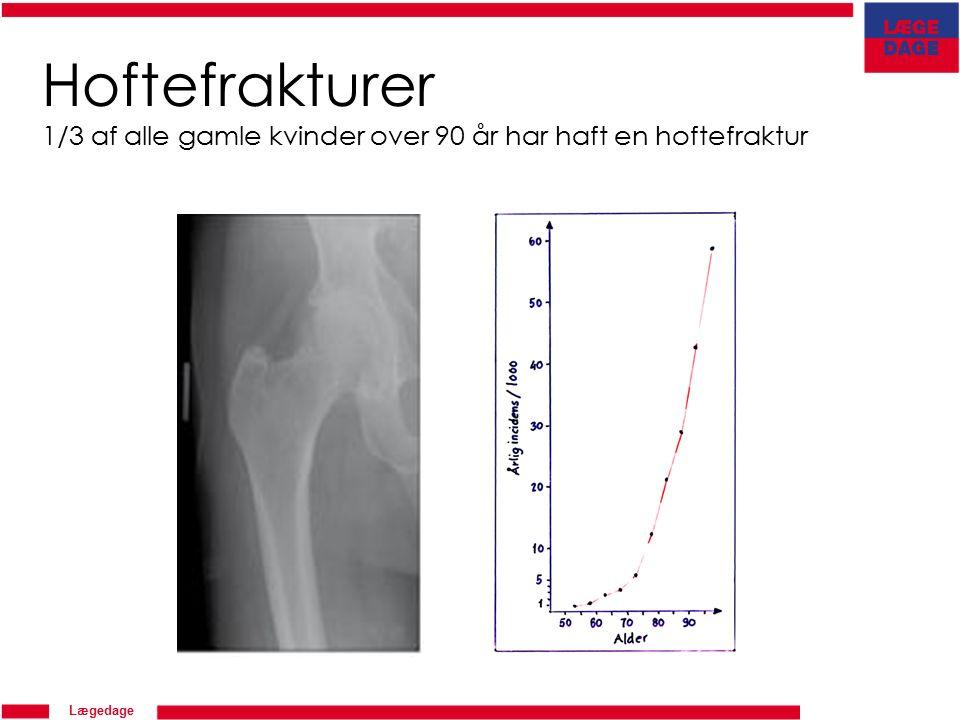 Lægedage Hoftefrakturer 1/3 af alle gamle kvinder over 90 år har haft en hoftefraktur