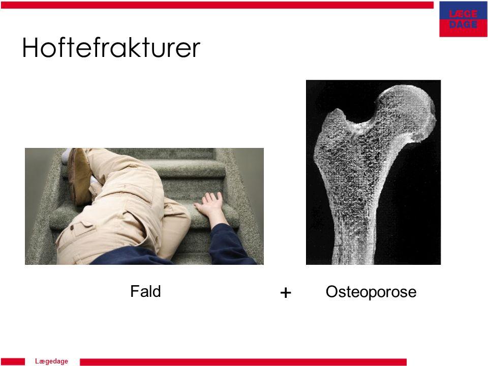 Lægedage Hoftefrakturer Fald + Osteoporose