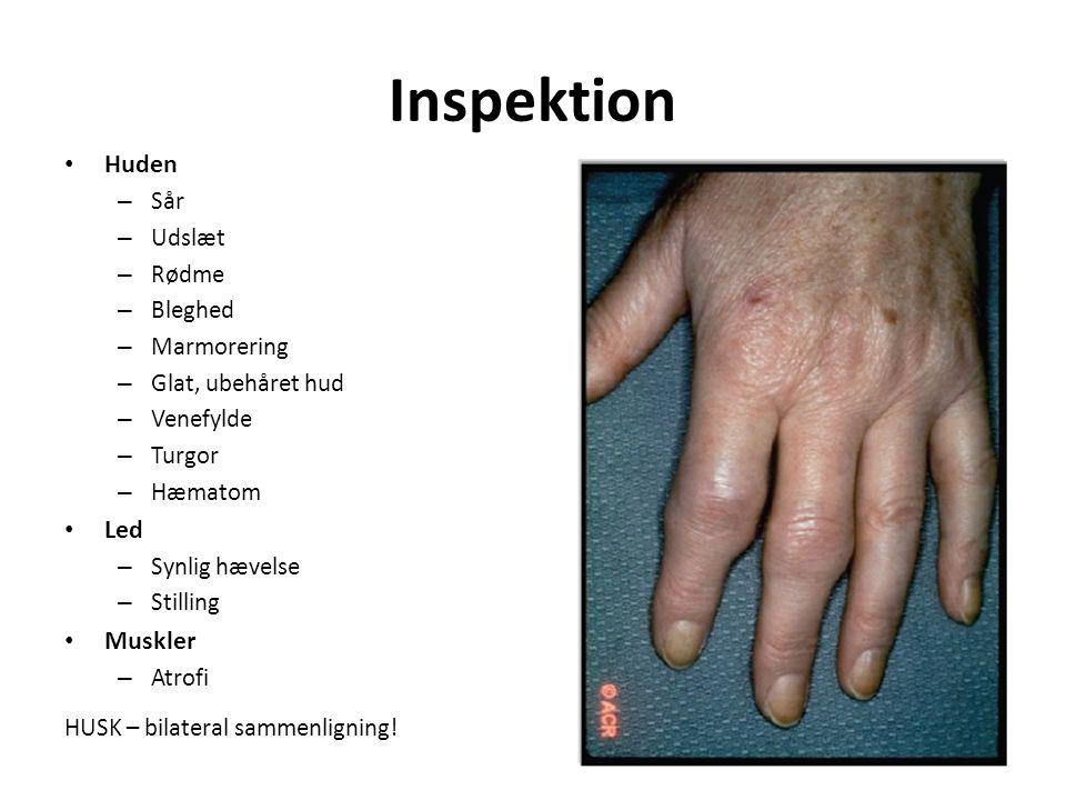 Inspektion Huden – Sår – Udslæt – Rødme – Bleghed – Marmorering – Glat, ubehåret hud – Venefylde – Turgor – Hæmatom Led – Synlig hævelse – Stilling Muskler – Atrofi HUSK – bilateral sammenligning!