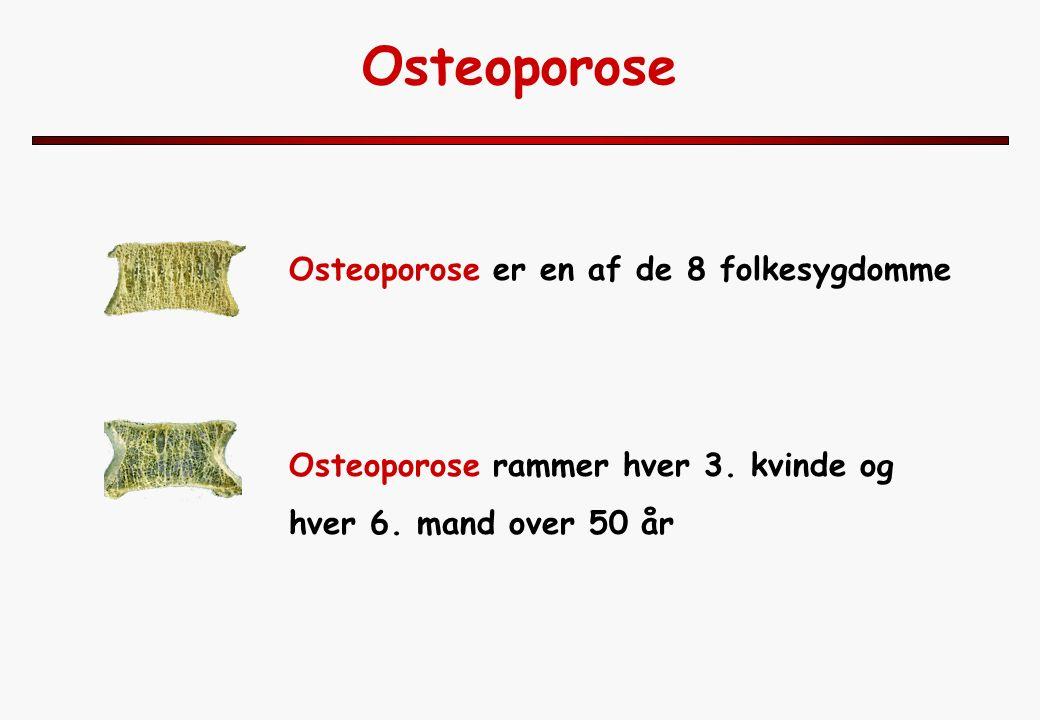 Osteoporose Osteoporose er en af de 8 folkesygdomme Osteoporose rammer hver 3.