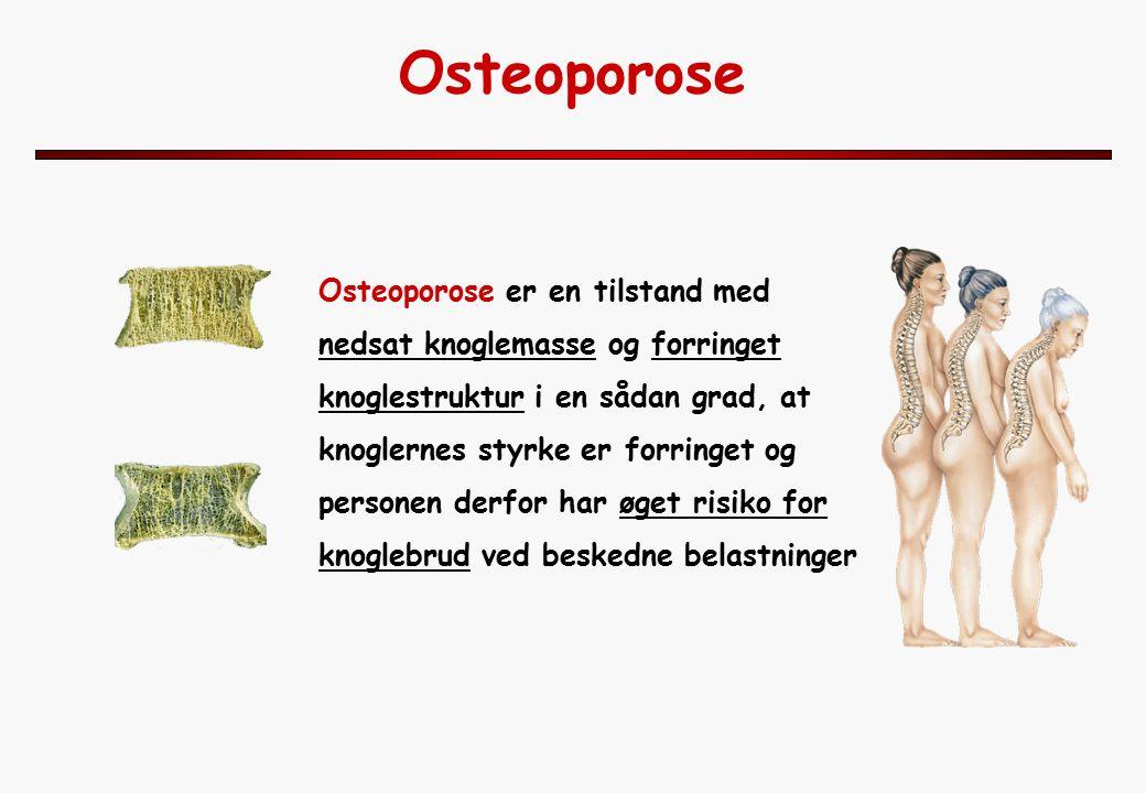 Osteoporose Osteoporose er en tilstand med nedsat knoglemasse og forringet knoglestruktur i en sådan grad, at knoglernes styrke er forringet og personen derfor har øget risiko for knoglebrud ved beskedne belastninger