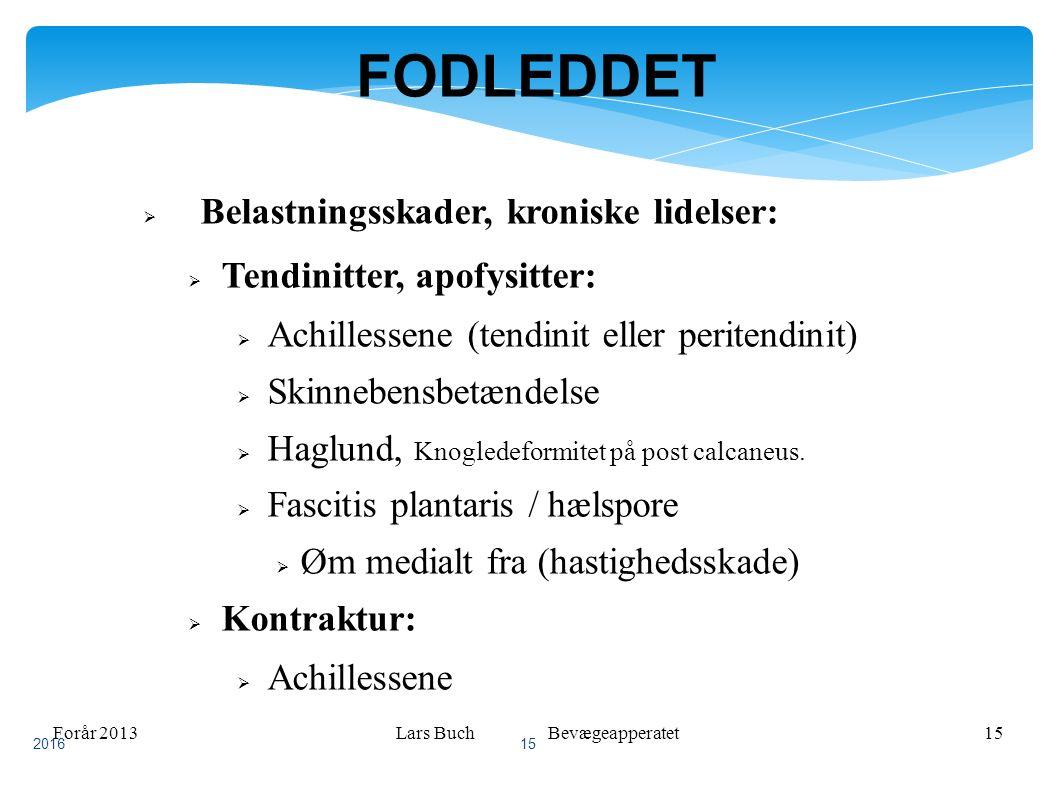 Forår 2013Lars Buch Bevægeapperatet15 FODLEDDET  Belastningsskader, kroniske lidelser:  Tendinitter, apofysitter:  Achillessene (tendinit eller peritendinit)  Skinnebensbetændelse  Haglund, Knogledeformitet på post calcaneus.