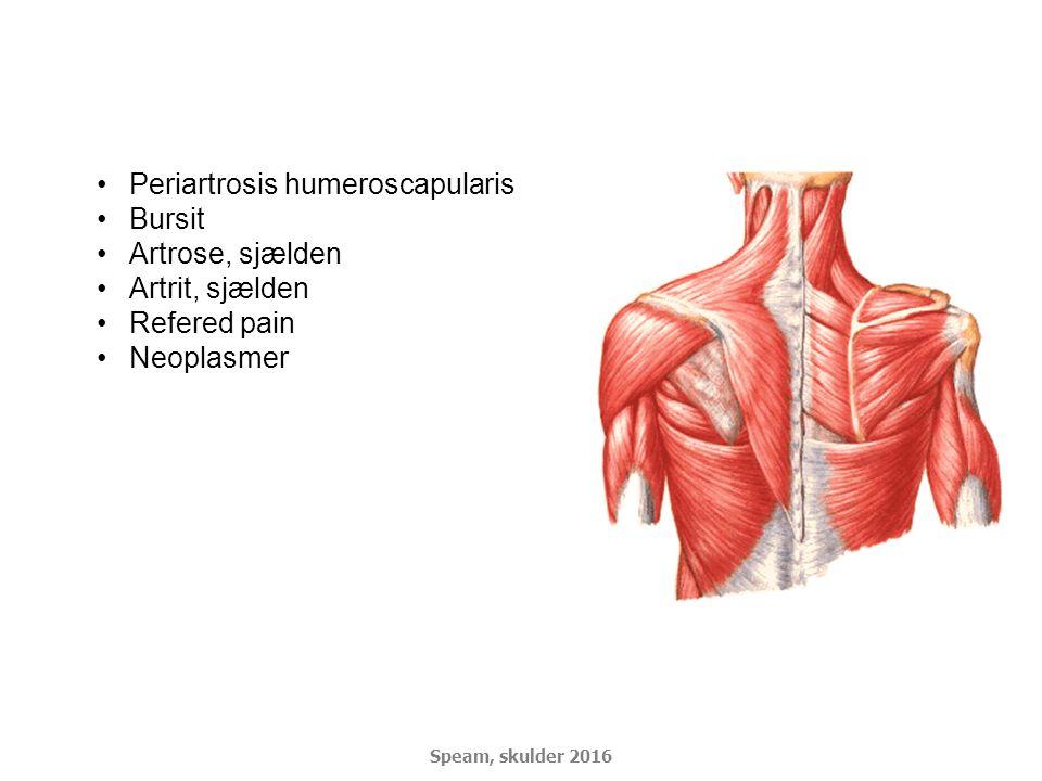Periartrosis humeroscapularis Bursit Artrose, sjælden Artrit, sjælden Refered pain Neoplasmer