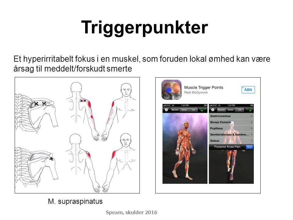 Triggerpunkter Et hyperirritabelt fokus i en muskel, som foruden lokal ømhed kan være årsag til meddelt/forskudt smerte M. supraspinatus Speam, skulde