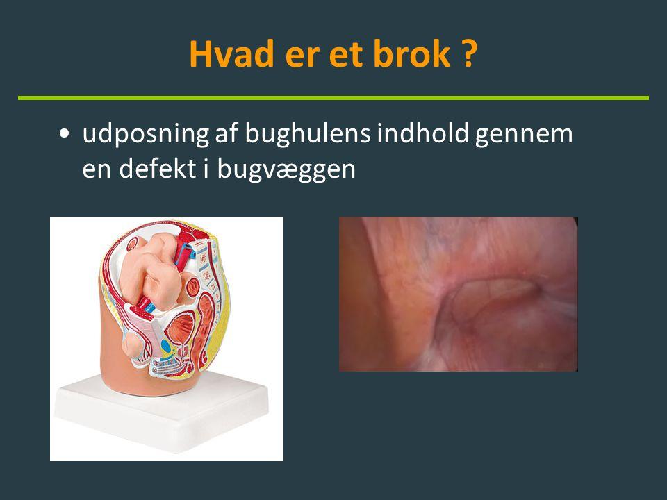Brok – hvad er hvad ? •lyskebrok •ventralhernier –sårbrok –navlebrok –andre brok
