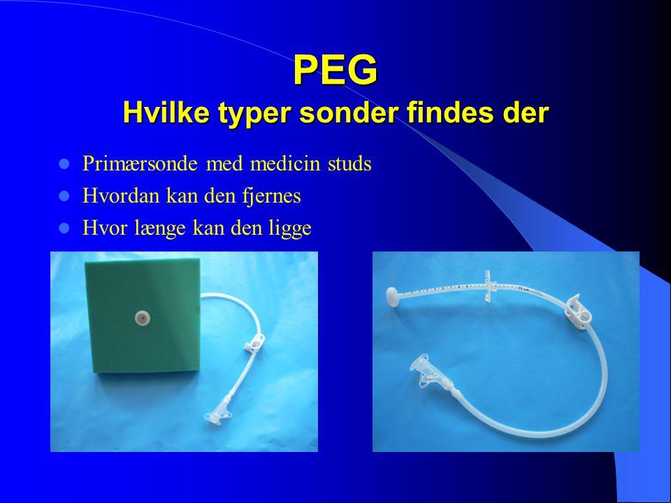 PEG Hvilke typer sonder findes der  Primærsonde med medicin studs  Hvordan kan den fjernes  Hvor længe kan den ligge
