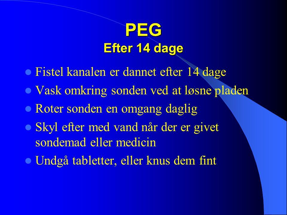 PEG Efter 14 dage  Fistel kanalen er dannet efter 14 dage  Vask omkring sonden ved at løsne pladen  Roter sonden en omgang daglig  Skyl efter med vand når der er givet sondemad eller medicin  Undgå tabletter, eller knus dem fint