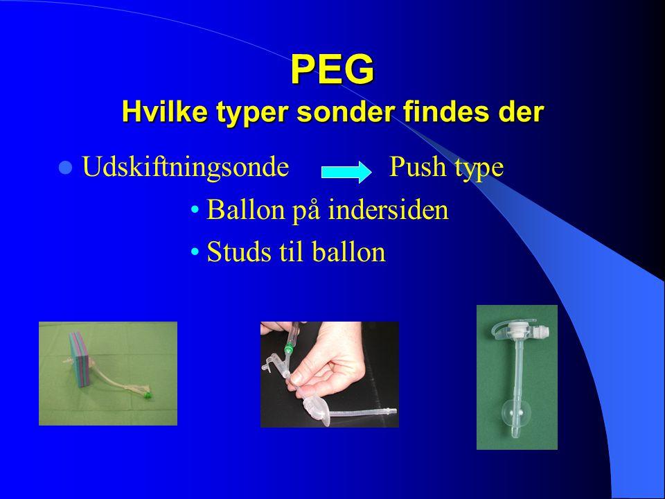 PEG Hvilke typer sonder findes der  Udskiftningsonde Push type •Ballon på indersiden •Studs til ballon