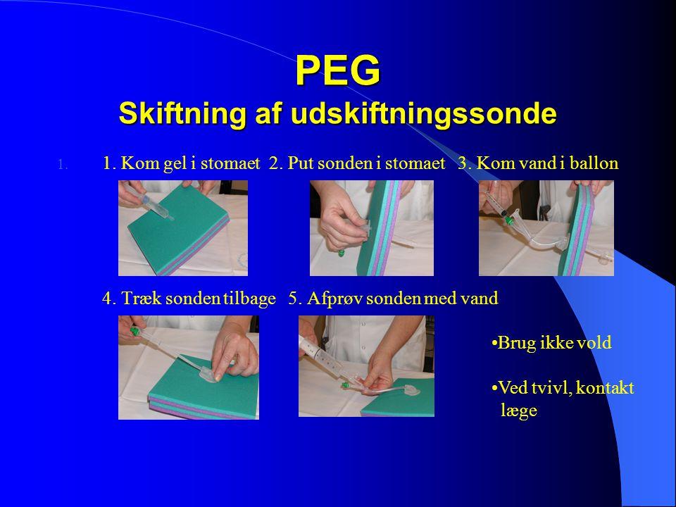 PEG Skiftning af udskiftningssonde 1.1. Kom gel i stomaet 2.