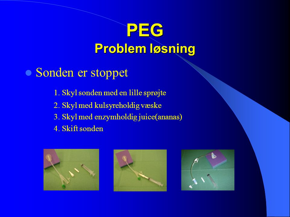 PEG Problem løsning  Sonden er stoppet 1.Skyl sonden med en lille sprøjte 2.