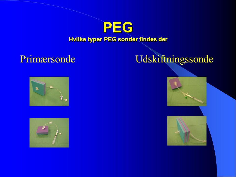 PEG Hvilke typer PEG sonder findes der  Primær sonde Pull type •Plade på indersiden •Kun indgang til mavesækken