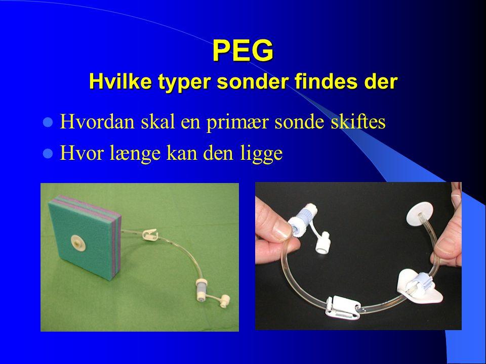 PEG Hvilke typer sonder findes der  Hvordan skal en primær sonde skiftes  Hvor længe kan den ligge