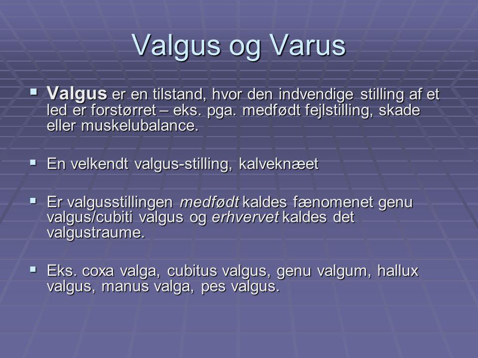 Valgus og Varus  Valgus er en tilstand, hvor den indvendige stilling af et led er forstørret – eks.