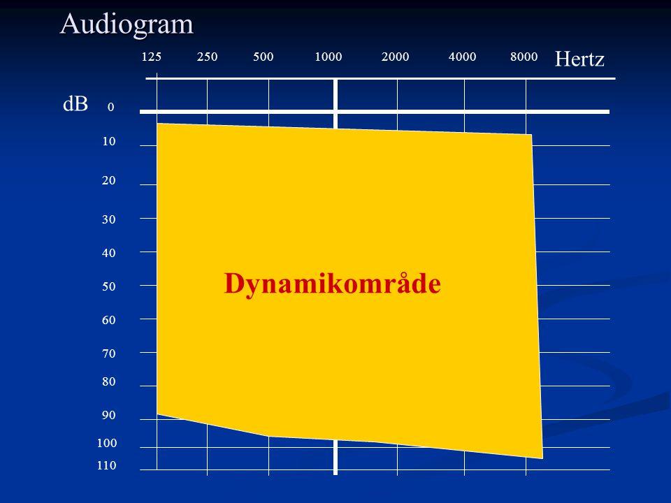 1255002501000200040008000 0 10 20 30 40 50 60 70 80 90 100 Audiogram 110 Hertz dB Dynamikområde